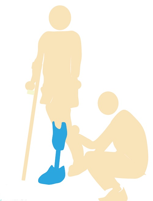 below-knee-prosthesis-care