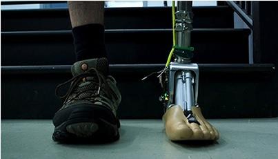 Smart-artificial-leg-3132307314560208544 (1)