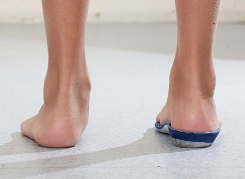 correction-with-foot-orthoses