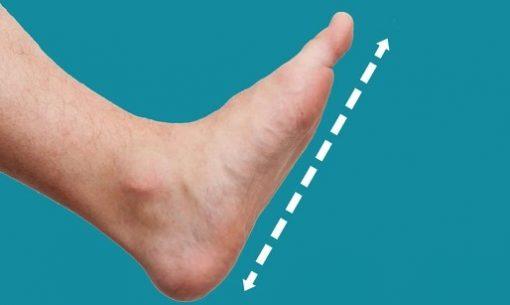flat-feet-featured-image-v3-1024x576-1-510x305